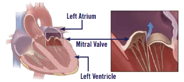 Pet heart valve diagram