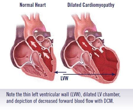 dialated-cardiomyopathy