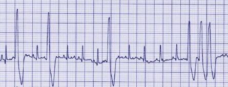 pet ECG scan