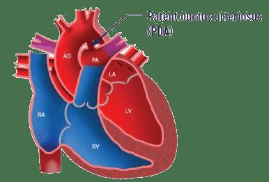 patent ductus arterious
