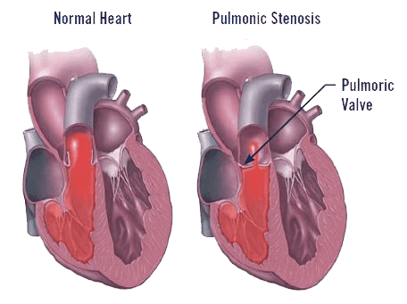 pulmonic-stenosis