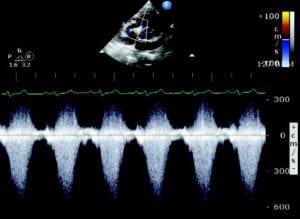 Pet ultrasound scan